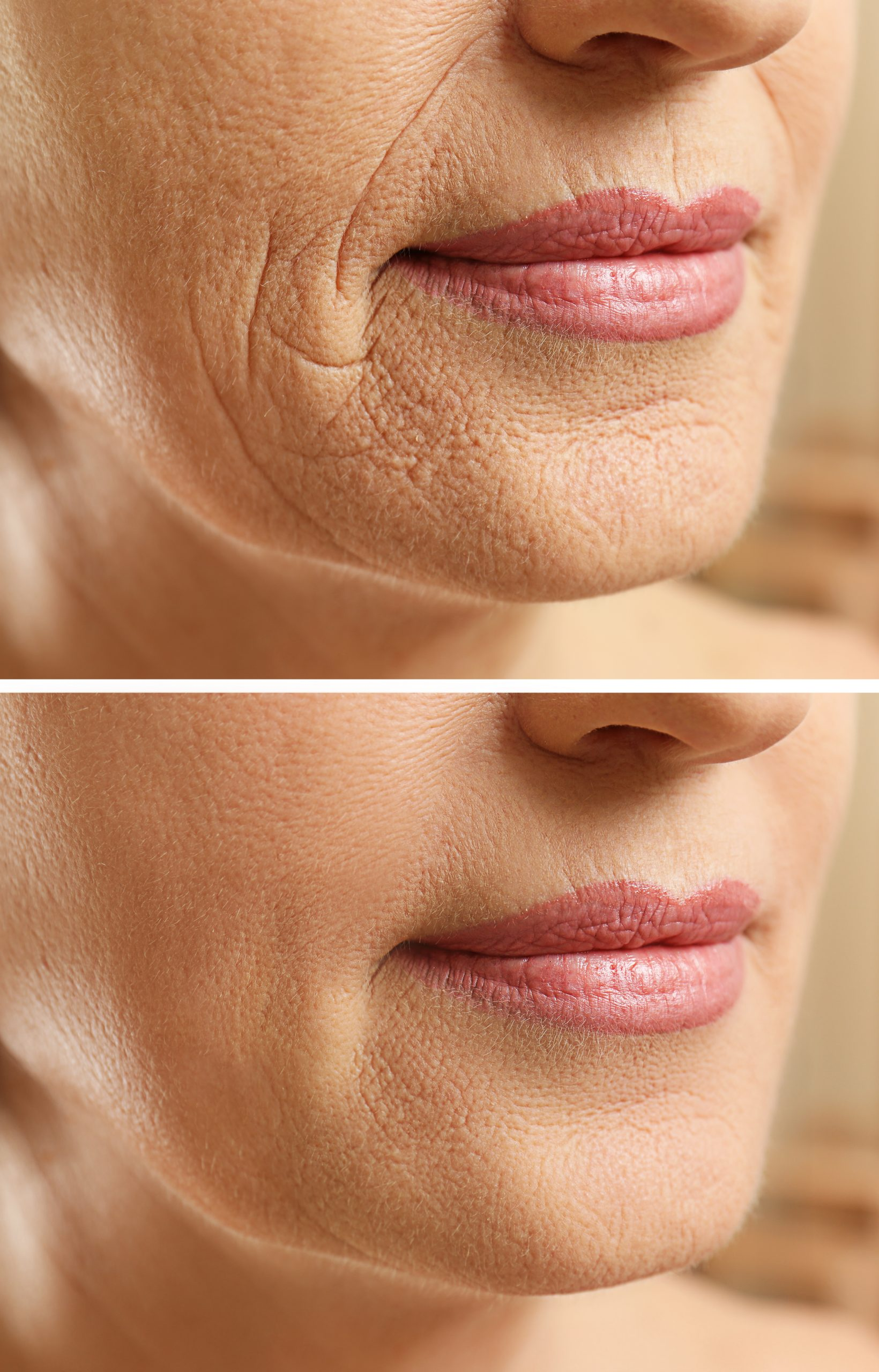 collagen skin patches image 1